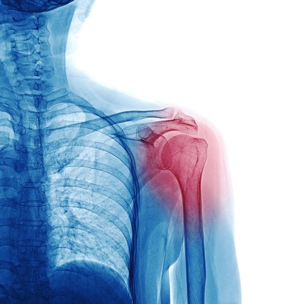 Skąd się bierze zapalenie stawów, czyli artroza